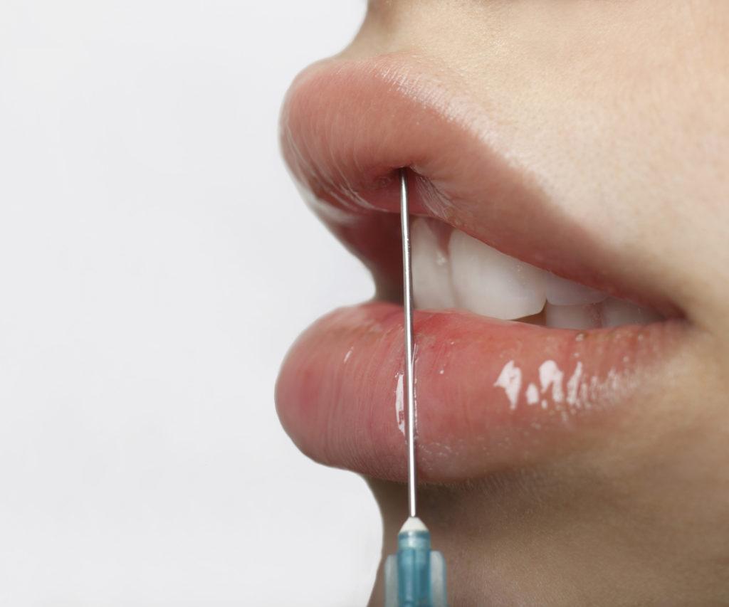 powiększanie ust