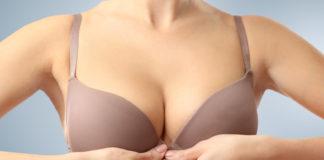 lifting biustu nićmi chirurgicznymi
