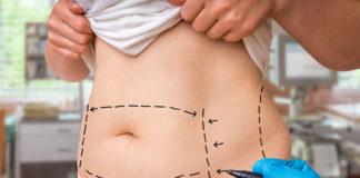 chirurgia plastyczna - brzuch