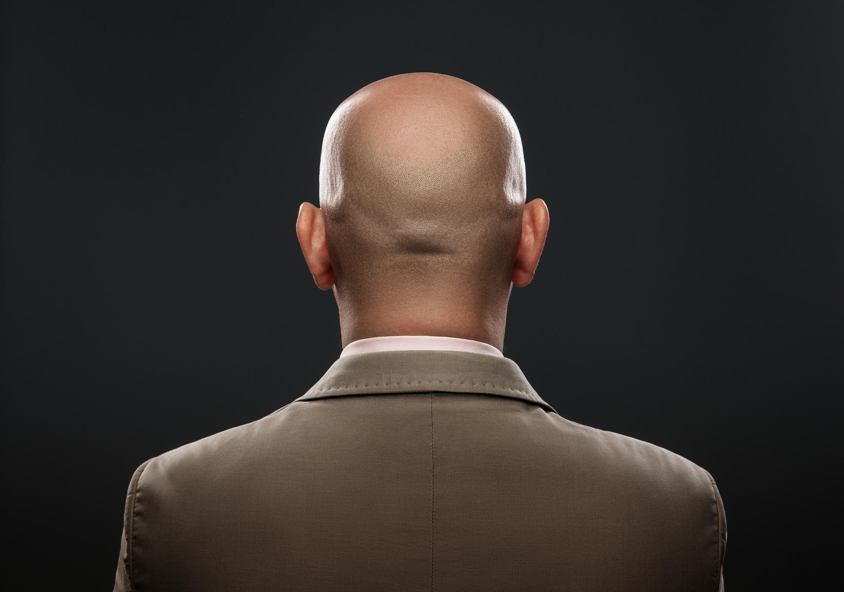 zmiana kształtu głowy, wyrownanie nierowności skóry głowy