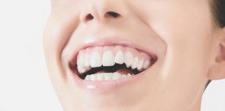 leczenie uśmiechu dziąsłowego,medycyna estetyczna
