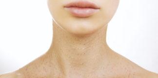 lifting szyji, medycyna estetyczna