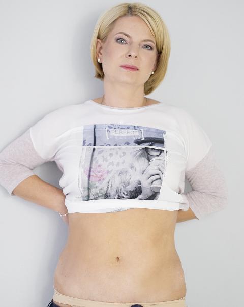 Ania_plastyka-brzucha_-Artplastica-4