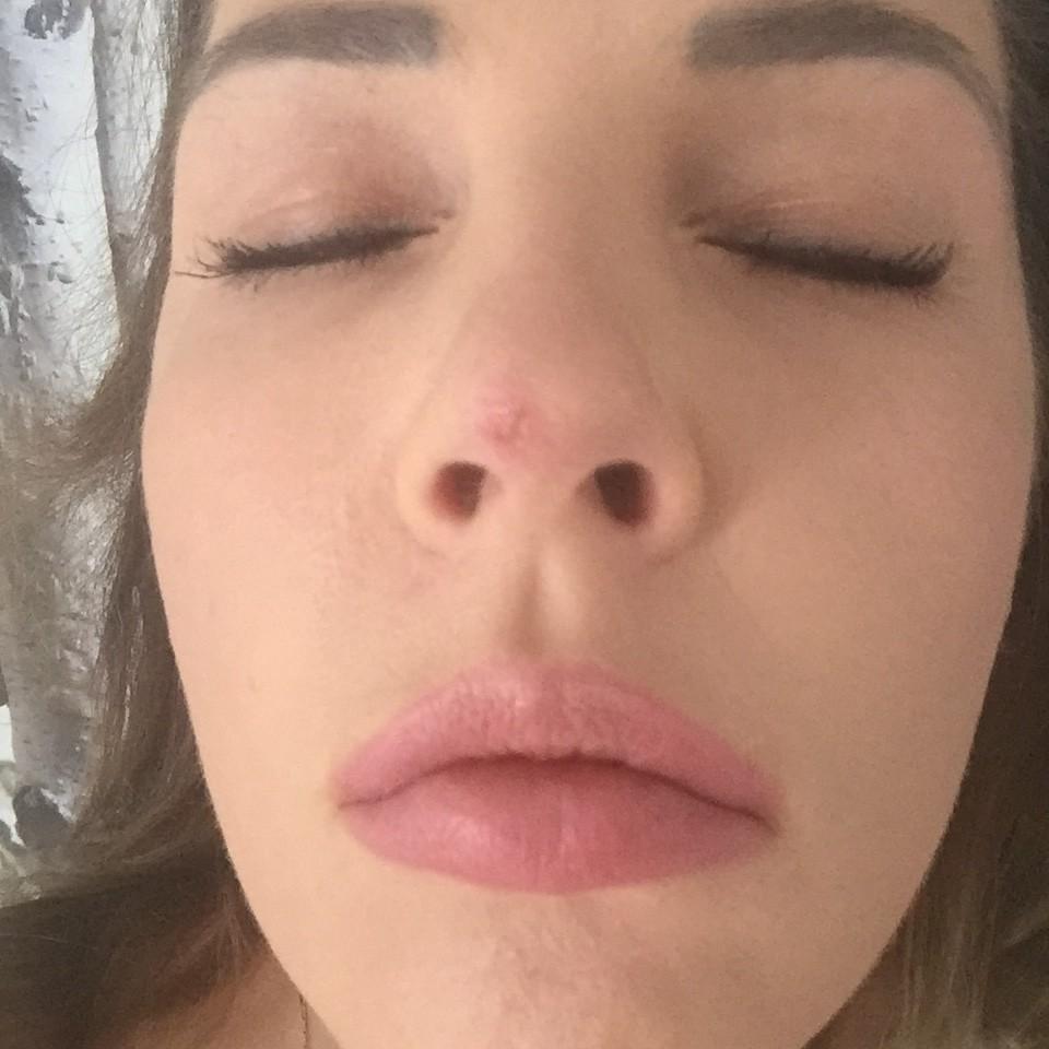 Nos po zabiegu