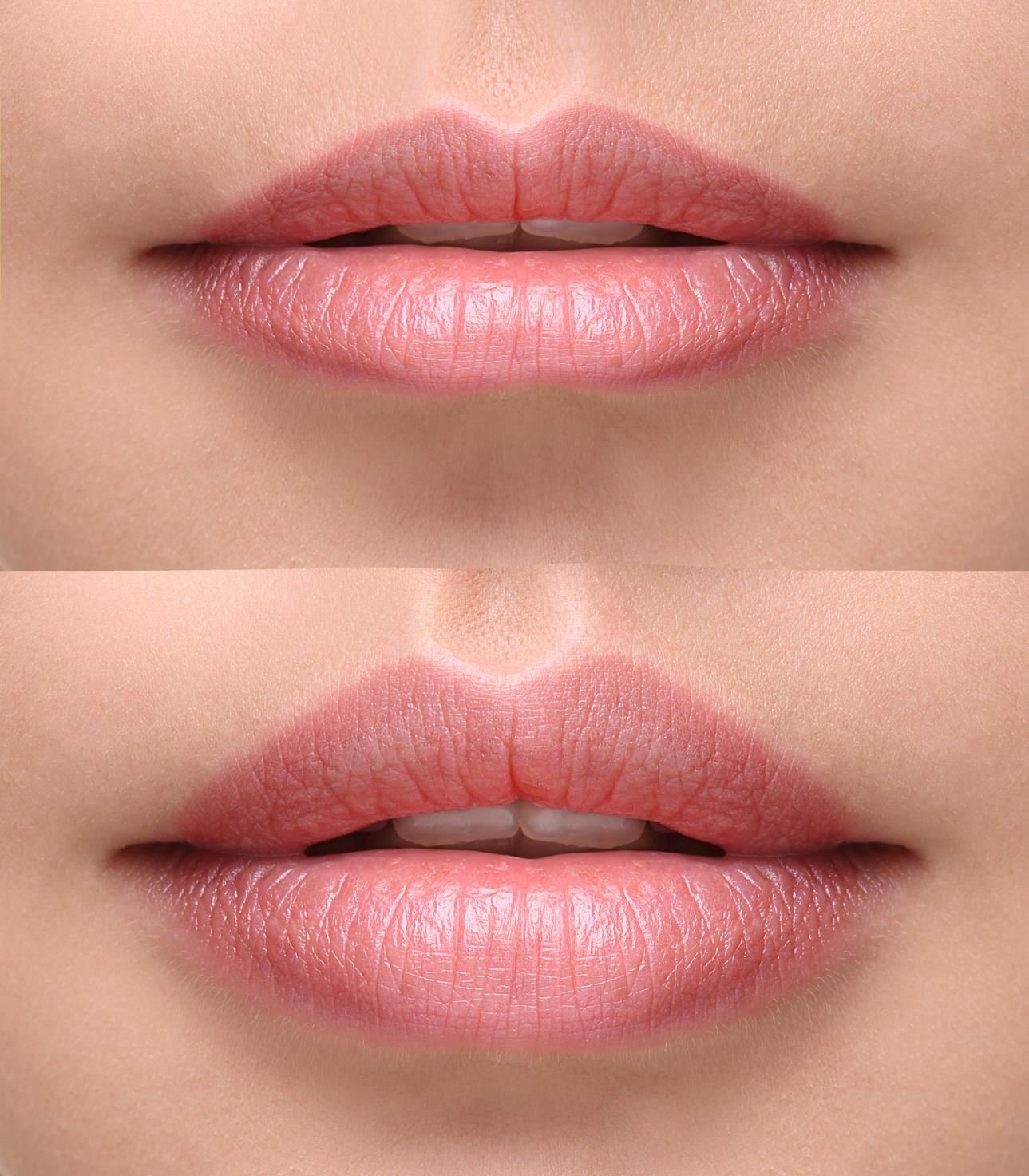Efekty po powiększeniu ust kwasem hialuronowym