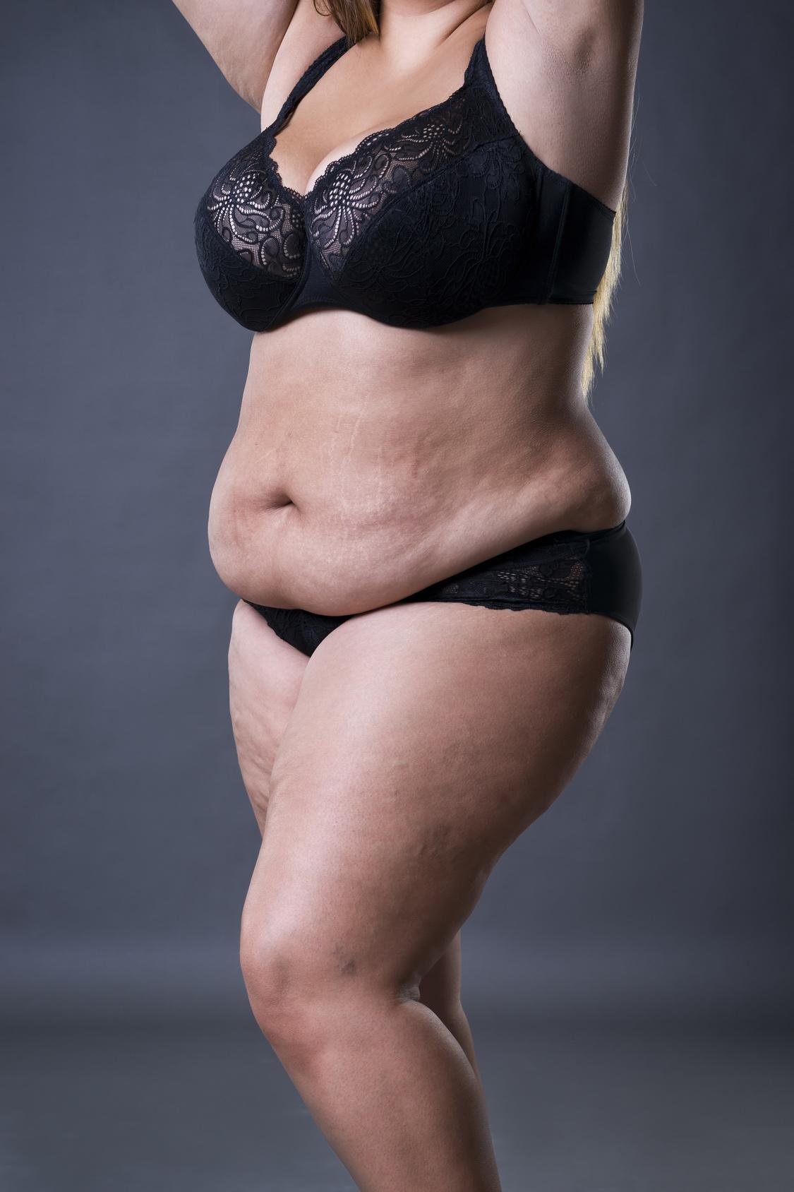 walka z otyłością, odchudzanie