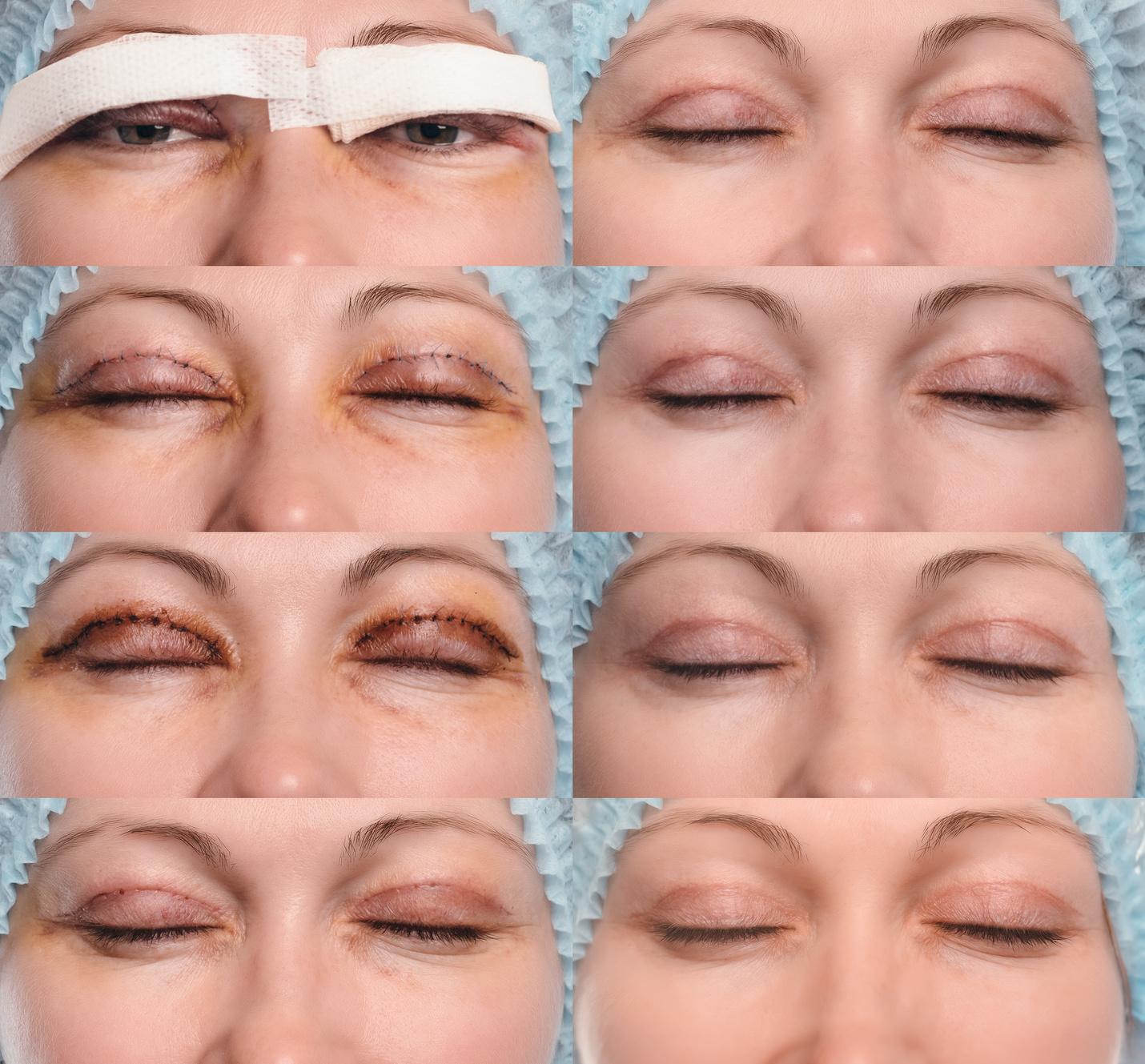 Blepharoplastyka chirurgia plastyczna