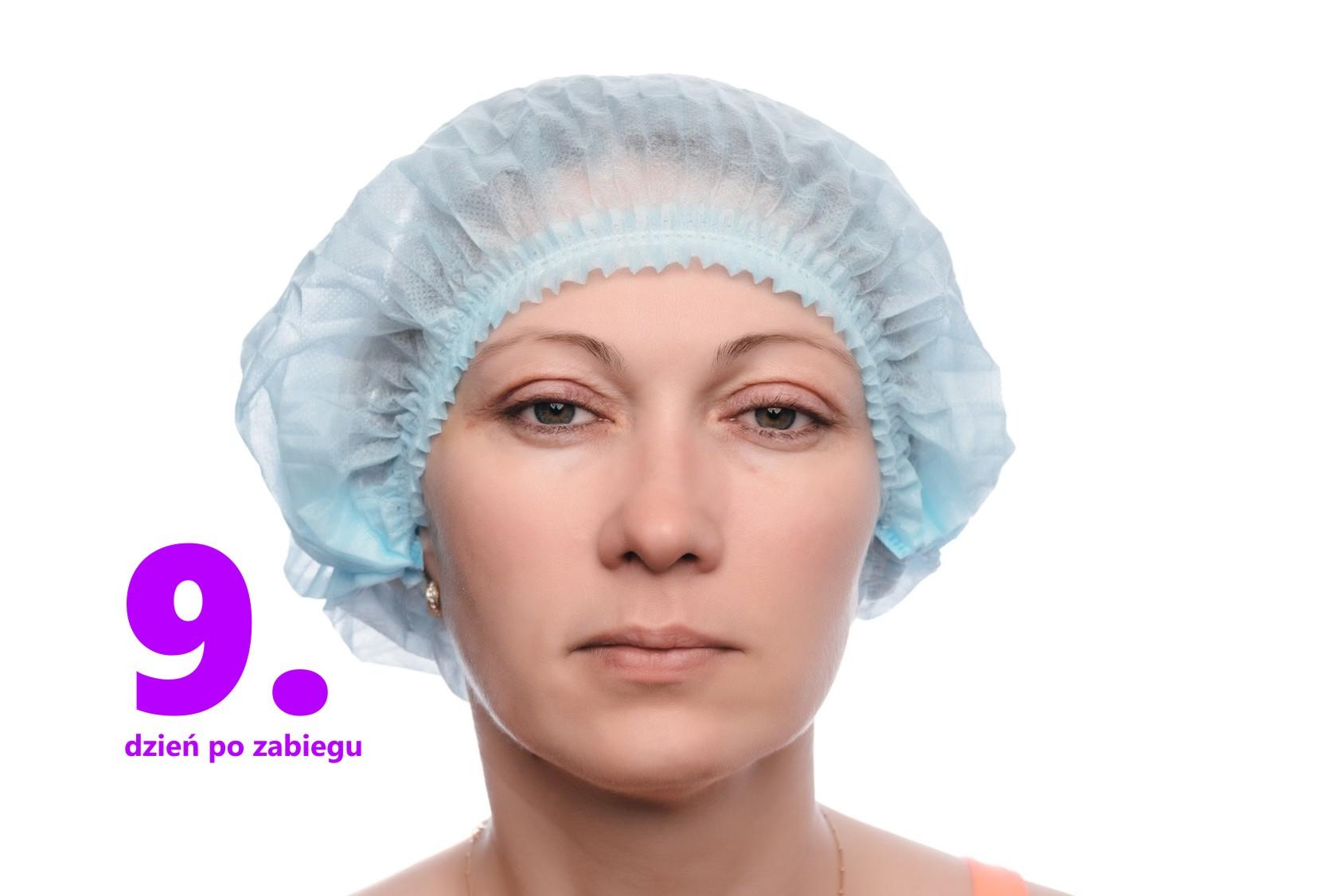 operacje oczu