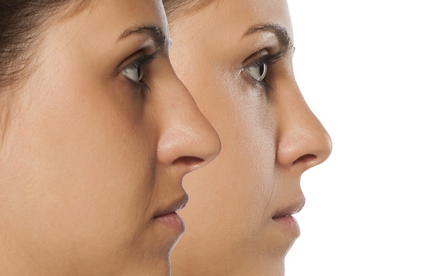 bezoperacyjna korekta nosa