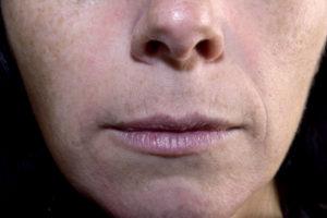 niechirurgiczna zmiana kształtu nosa
