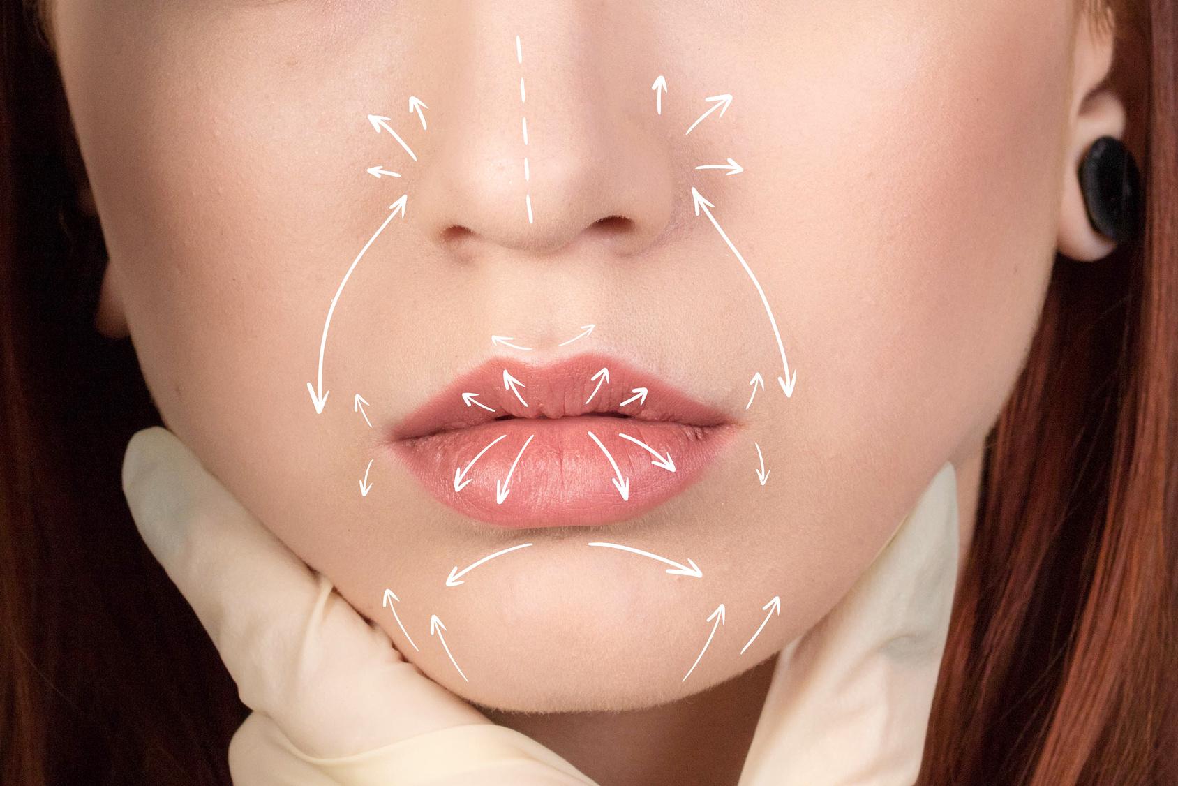 powiększanie ust własnym tłuszczem