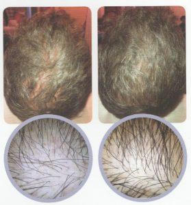 Regeneris na włosy