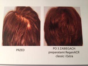 Regeneris na gęste włosy
