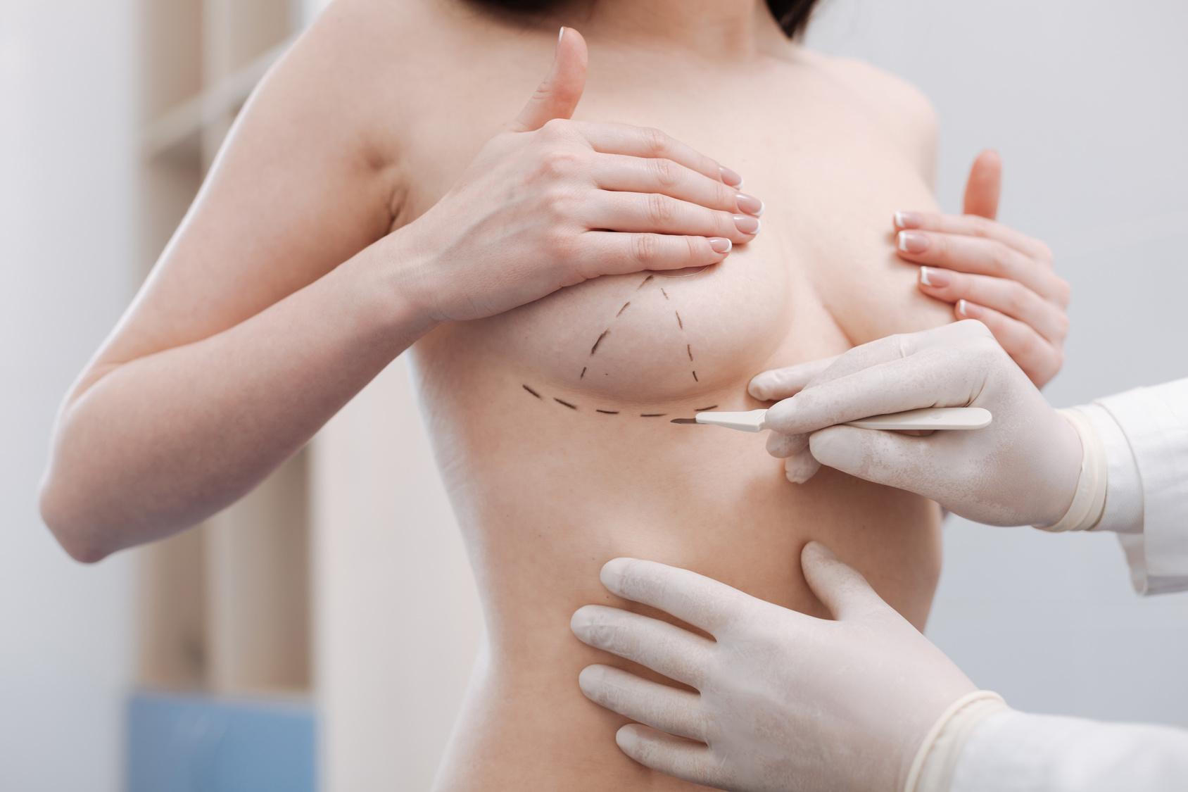 chirurgia plastyczna,korekta piersi