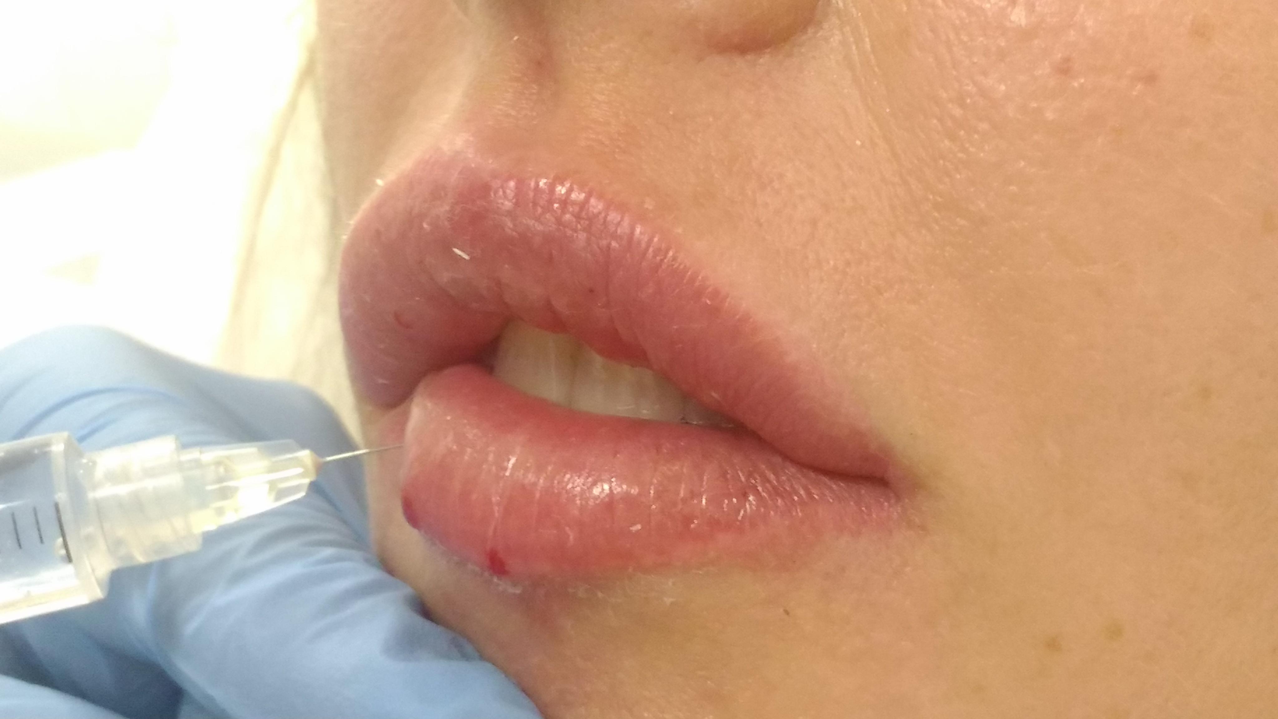 medycyna estetyczna,usta,kwas hialuronowy